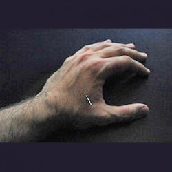 hand_with_needle