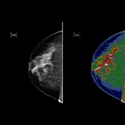 mammogram_imaging